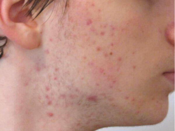 rostro con acné