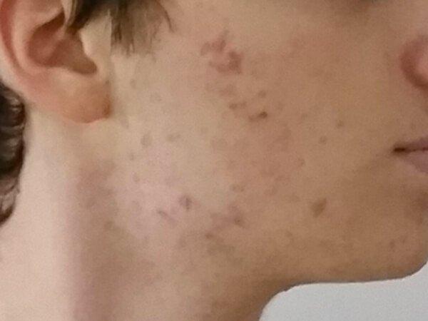 Rostro después del tratamiento para el acné