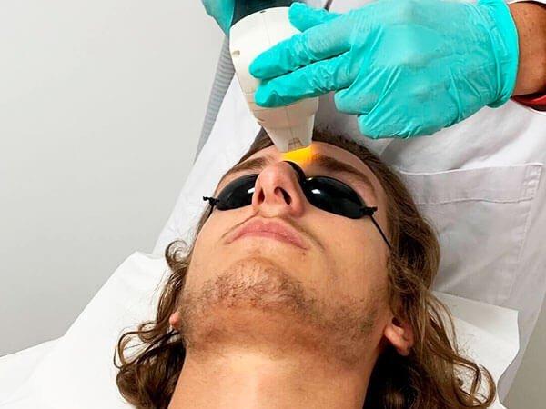 Tratamiento con luz pulsada rostro masculino
