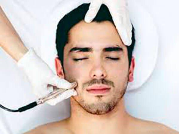 Radiofrecuencia fraccionada tratamiento facial