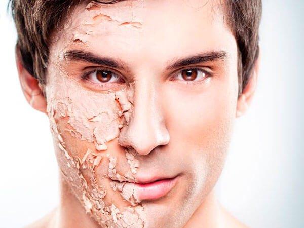 Peeling químico masculino