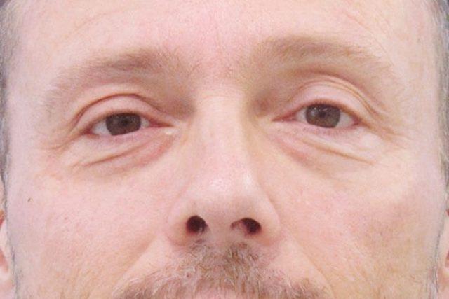 antes-blefaroplastia-hombre
