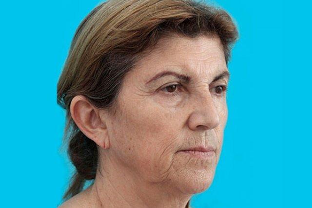 antes-del-lifting-facial