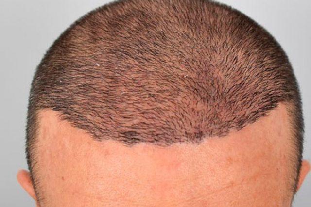 antes-dermopigmentacion-calvicie