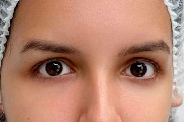 antes-dermopigmentacion-cejas