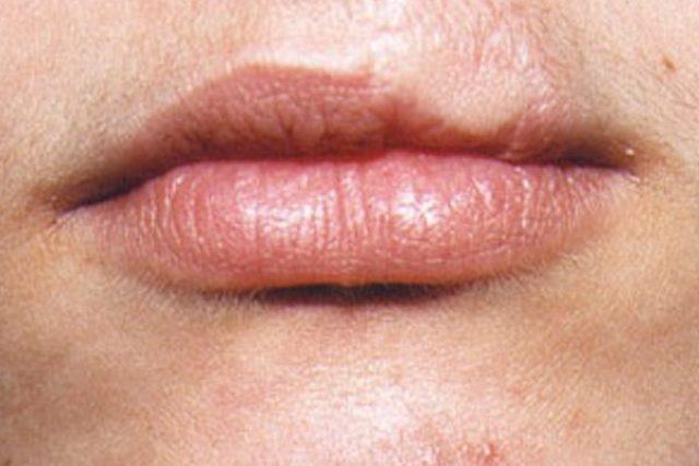 antes-dermopigmentacion-labios