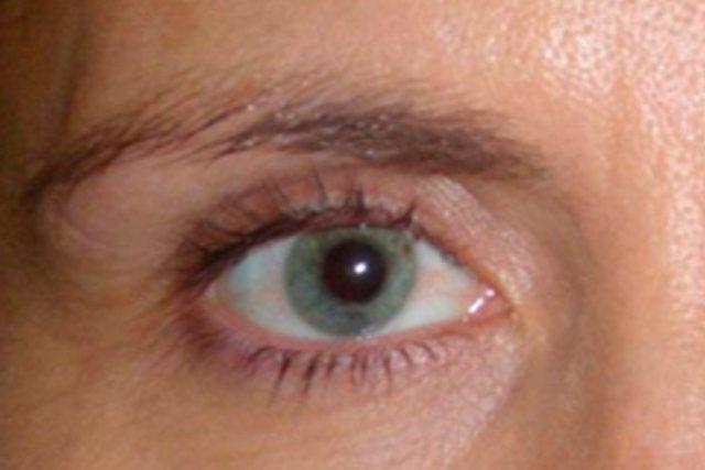 antes-dermopigmentacion-ojos