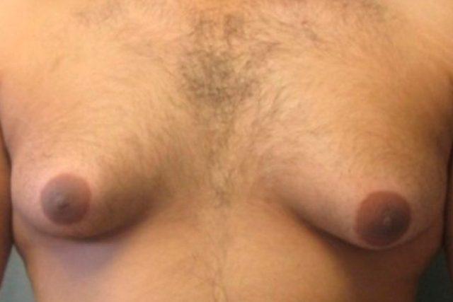 antes-ginecomastia