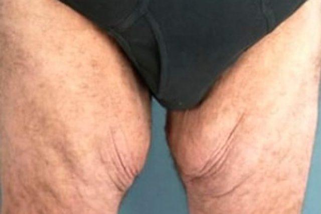 antes-lifting-muslos-hombre