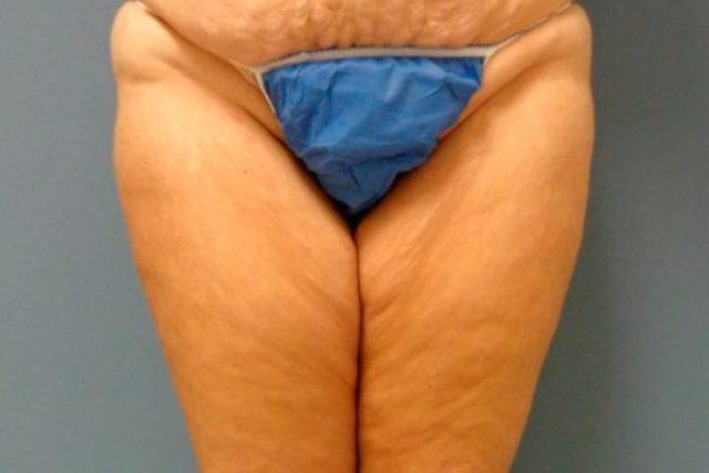 antes-lifting-muslos-mujer