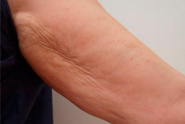 antes-mesoterapia-brazos