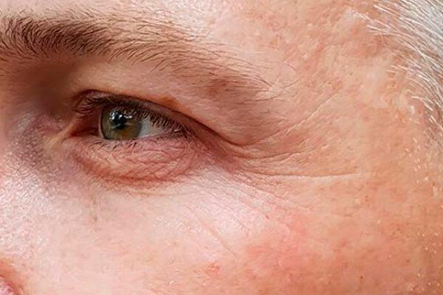 Antes de la mesoterapia facial