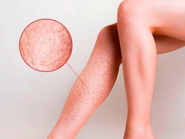 Tratamiento para las arañitas vasculares