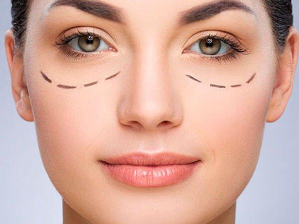 Cirugía de ojos