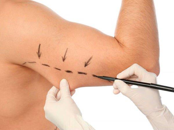 Cirugía de brazos en hombres