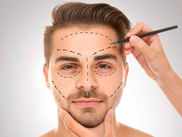 cirugia-facial-hombres