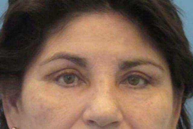 despues-blefaroplastia-mujer