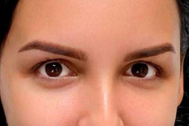 despues-dermopigmentacion-cejas