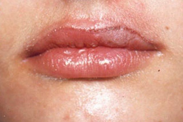 despues-dermopigmentacion-labios