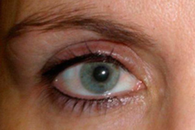 despues-dermopigmentacion-ojos