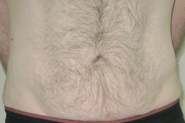 despues-vform-abdomen