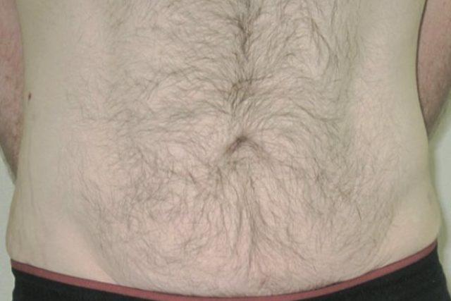 abdomen después del vform