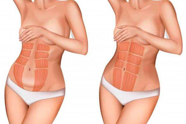 diástasis de los rectos abdominales