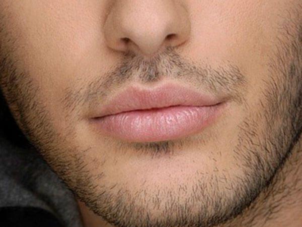 cirugía de labios en hombres