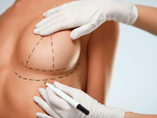 cirugía de elevación de senos