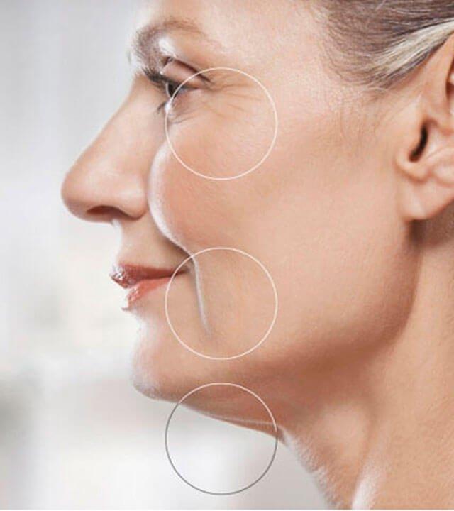 reducir-arrugas