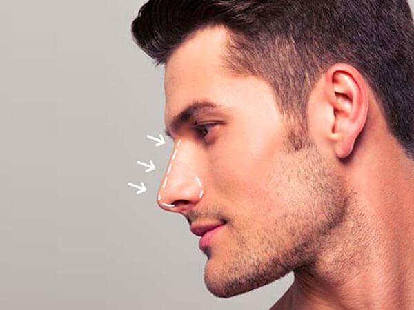 Cirugía de nariz en hombres